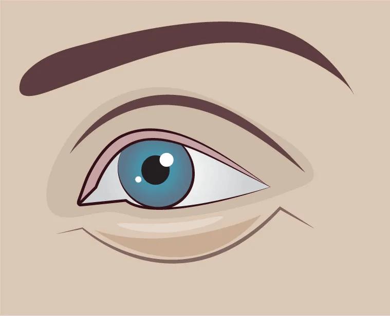 eye-bags-01