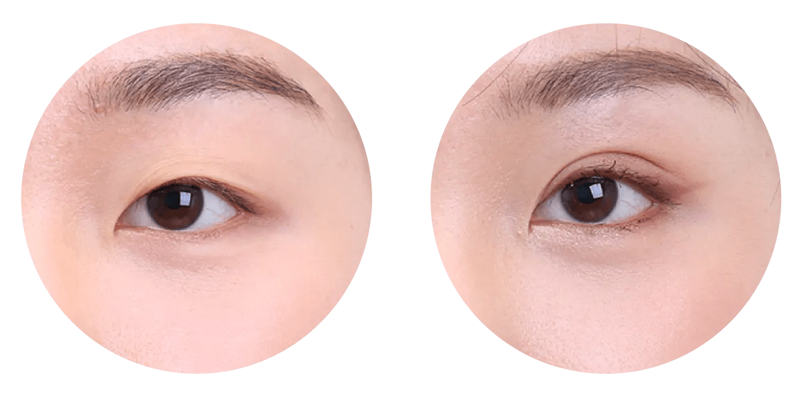 eyelids-01