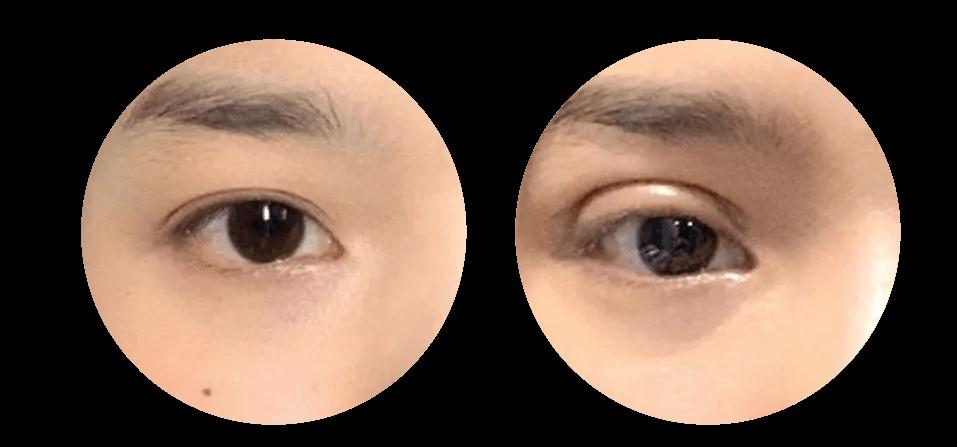eyelids-02