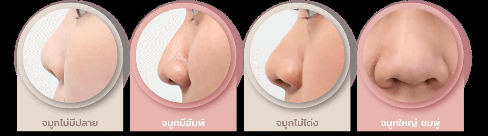 noseclose-01