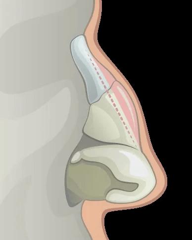 noseclose-06