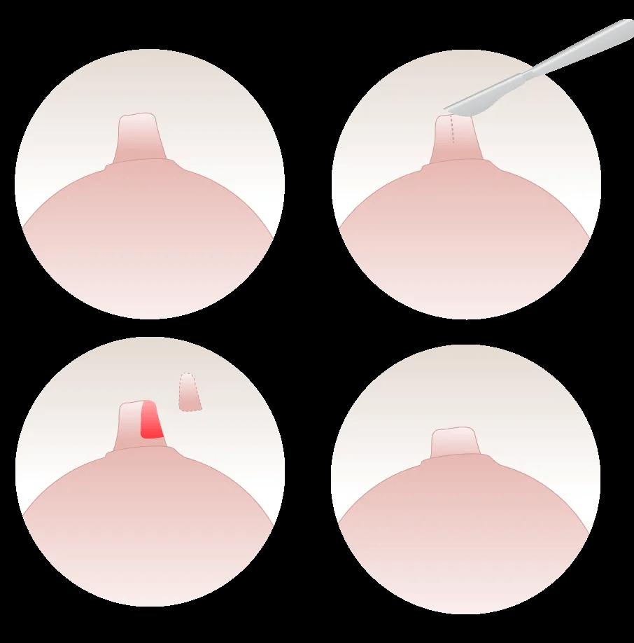 reducenipple